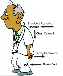 Posture - Rounding Shoulders, Chest Caving In, Palm Backwards, Knees Bent, Slumped Over